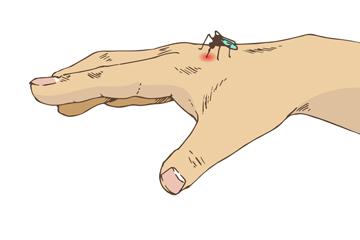 创意被蚊子叮咬的手矢量图